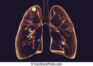 Secondary tuberculosis in lungs, apical nodule, 3D...