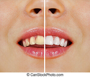secondo, imbiancando, denti, prima
