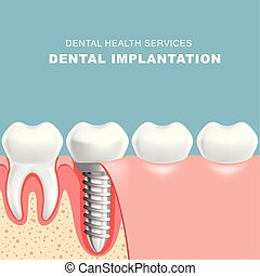 section, -, gencive, dents, implantat, dentaire, rang