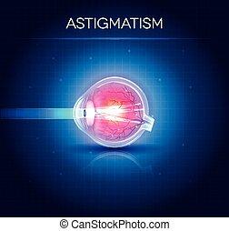 section., syn, astigmatism, kors, anatomi, disorder., ögon
