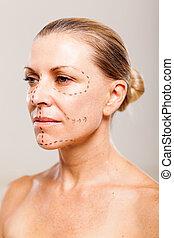 senior patient before plastic surgery