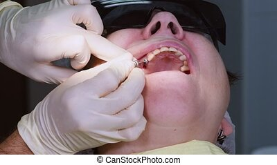 Oral surgeon screwing dental implant into senior woman gum and jaw bone. Dentist and assistant work with a patient in modern dental clinic