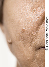 senioren, pensionär, weibliche , haut, fibroma, closeup.
