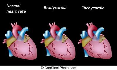 serce, chory, stosunek, pętla, normalny
