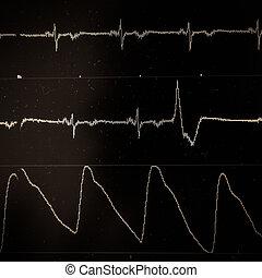 serce, ekran, hydromonitor