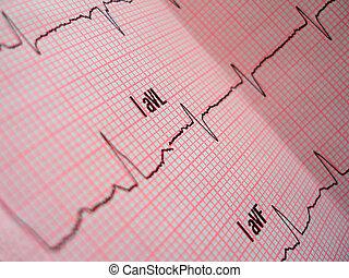 serce, układ, analiza