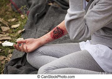 serious arm injury