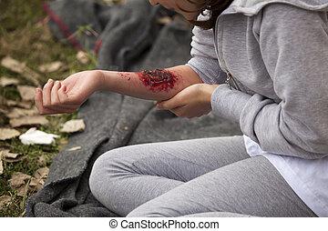 serious injury on girl's arm