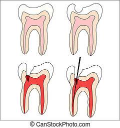 set, denti