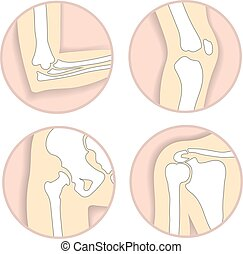 Set of human joints, elbow, knee joint, hip and shoulder joint, skeletal bone structure. Emblem anatomy and orthopedic sign for medical diagnostic center, vector illustration.