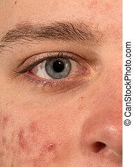 Severe Acne cheek and blue eye closeup
