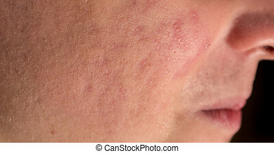 Severe Acne, side view of cheek