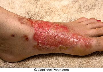 Severe burns in women