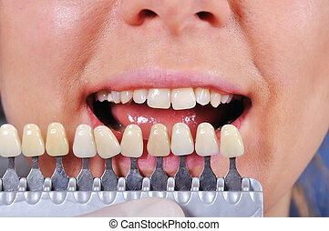shade determination tooth with help of a shade guide