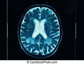 sharp ct scan of the human brain
