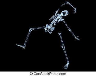 Shattered Skeleton - X rayed skeleton that is broken and...