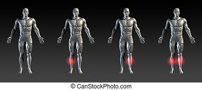 Shin Splints with Red Glow on Area Series
