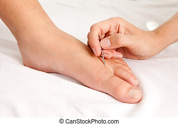 Detail of a Shonishin Acupuncture Heragata spear tool being used on the foot of a young male patient