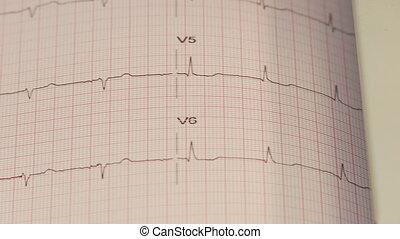 Shot of EKG paper