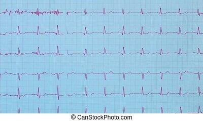 heart pulse - Shot of heart pulse