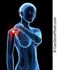 Shoulder pain - Woman having pain in the shoulder