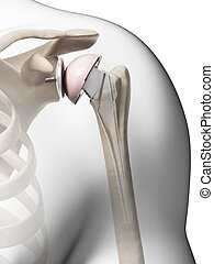 3d rendered illustration of a shoulder replacement