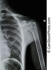 shoulder  x-rays  image