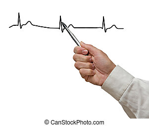 Showing ECG graph
