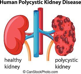 showing, nemoc, diagram, polycystic, lidský, ledvina