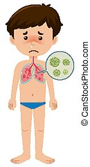 Sick boy with coronavirus on white background