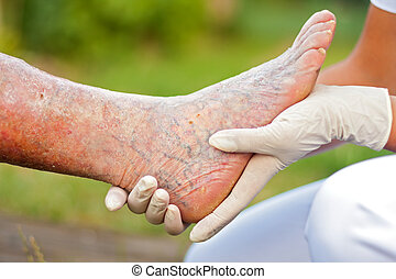 Doctor / Nurse holding an elderly woman's sick leg.