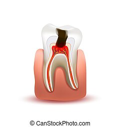 Sick human tooth with caries in final stage in pink gum...