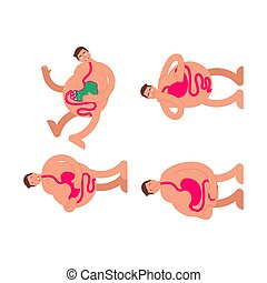 Sick stomach set. Heaviness in belly. bloating and nausea. vector illustration?