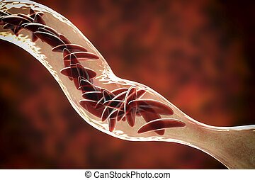 Sickle cell anemia, 3D illustration. Clumps of sickle cell ...