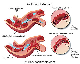 sickle cell anemia - medical illustration of the effects of...