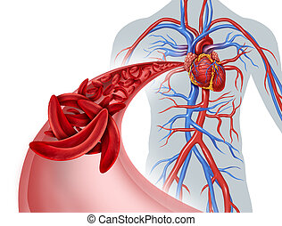 Sickle Cell Circulation Blockage - Sickle cell heart ...