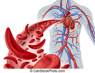 Sickle Cell Heart Circulation - Sickle cell heart ...