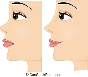 Nose Before and After - Side View Illustration of a Woman...