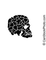 Side View of Cracked Skull