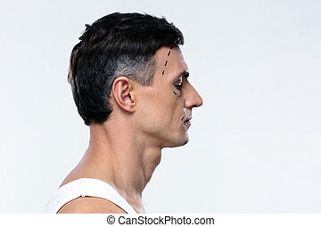 Side view portrait of a man marked with lines for plastic surgery