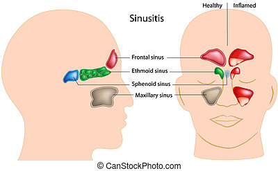 Sinusitis - Diagram showing sinuses of the head, eps8