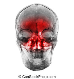 Sinusitis . Film x-ray of human skull with inflamed at sinus