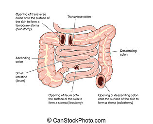 Sites of colostomy and ileostomy - labeled