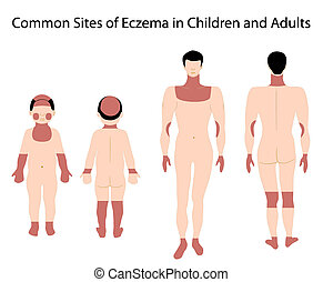 Sites of Eczema - Diagram showing sites of eczema, eps8,