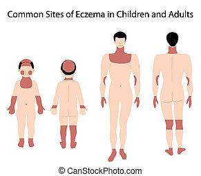 sitios, eczema