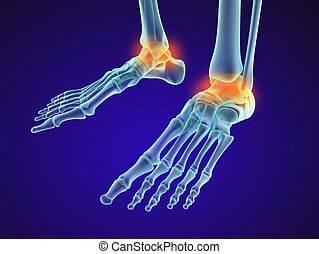 Skeletal foot - injuryd talus bone. Xray view. Medically accurate 3D illustration