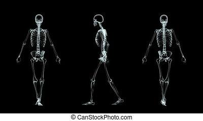 skeleton  - walking skeleton