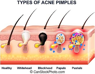 Skin Acne Anatomy Composition - Colored skin acne anatomy...