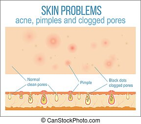 Skin and pores