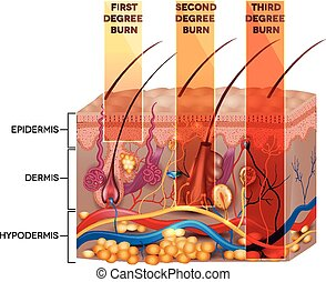 Skin burn classification. First, second and third degree...